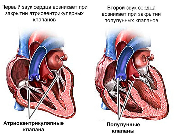 образование шумов в сердце