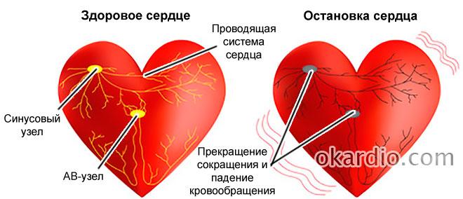 Остановка сердца как называется