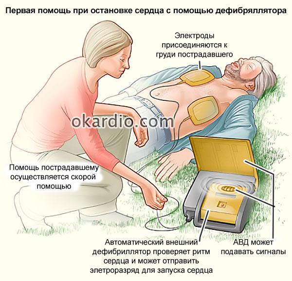 профессиональная помощь при остановке сердца с помощью дефибриллятора