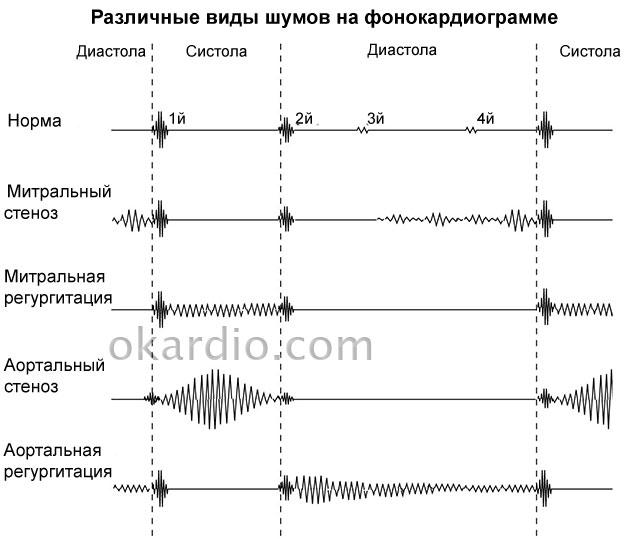 наглядная схема различных шумов сердца