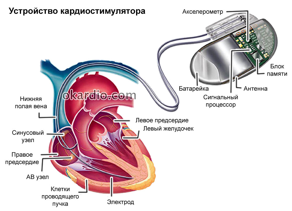 Кардиостимулятор сердца: что это такое, как происходит установка ...