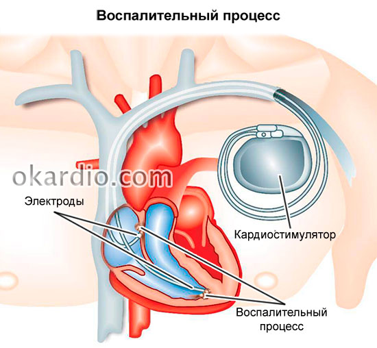 воспалительный процесс в сердце в месте прикрепления электрода