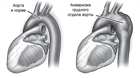 Болит сердце что делать и принимать в домашних условиях?