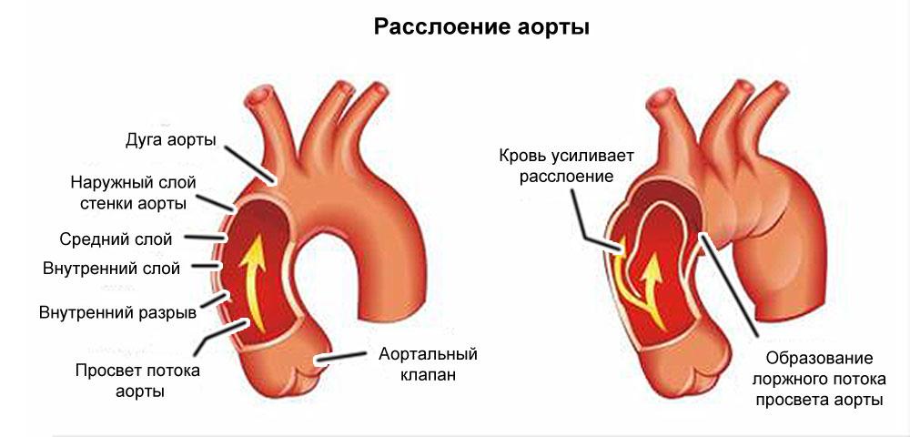 Постоянная боль в области сердца: её возможные причины