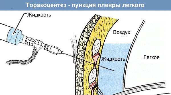 пункция при плеврите