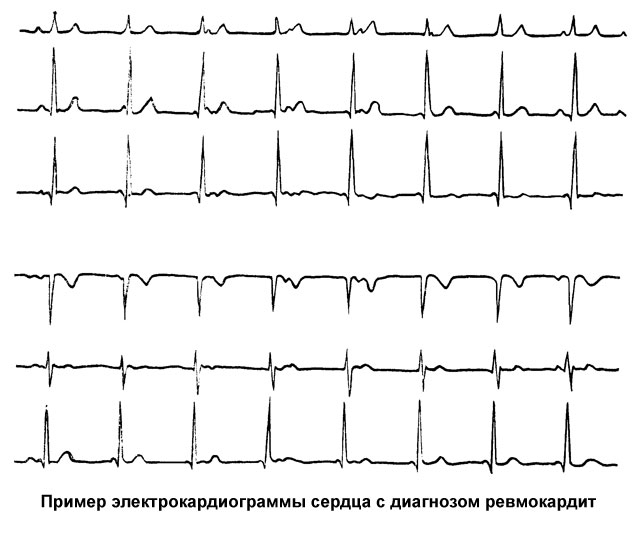 пример электрокардиограммы сердца с диагнозом ревмокардит