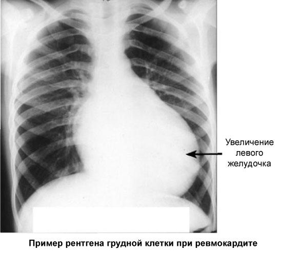 пример рентгена сердца при ревмокардите