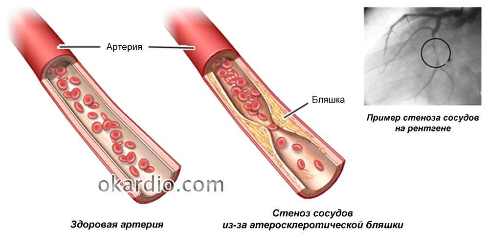 Ангиопластика: показания, подготовка, как проходит процедура, риски