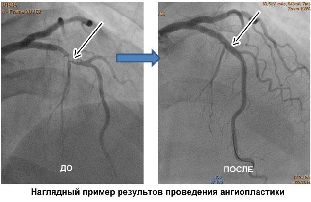 пример рентгена сосудов до и после ангиопластики