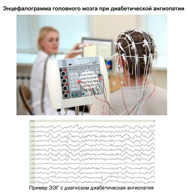 ЭЭГ при диабетической энцефалопатии