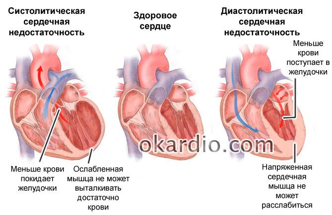 Изображение - Гипертония 3 стадии 3 степени риск 457-01