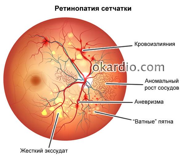 Изображение - Гипертония 3 стадии 3 степени риск 457-04