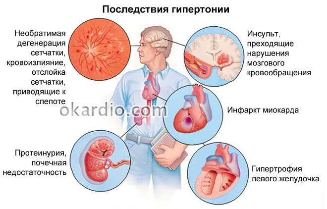 Изображение - Гипертония 3 стадии 3 степени риск 457-05