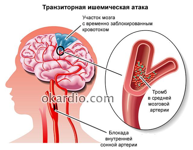 Изображение - Гипертония 3 стадии 3 степени риск 457-06