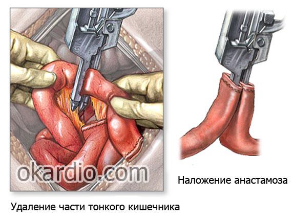 удаление некротезинованной части кишечника