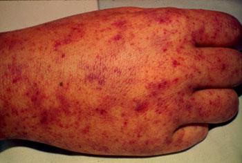 петехиальные кровоизлияния