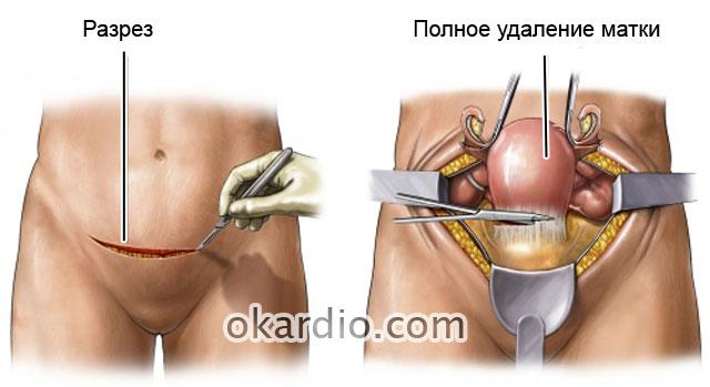 Подготовка к операции по удалению миомы