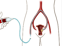 процедура эмболизации маточных артерий