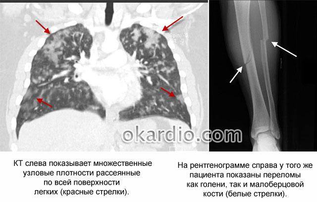 жировая эмболия после перелома
