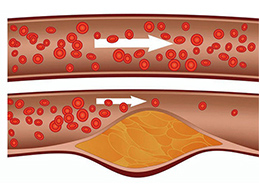 нормальный сосуд и пораженный жировой эмболией