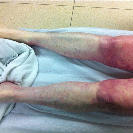 ноги больного синдромом Лериша
