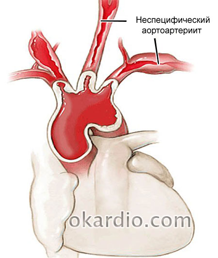 неспецифический аортоартериит