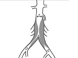 окклюзия аорты при синдроме Лериша
