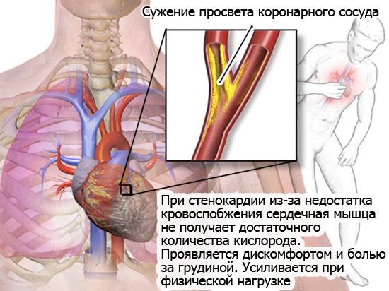 описание стенокардии