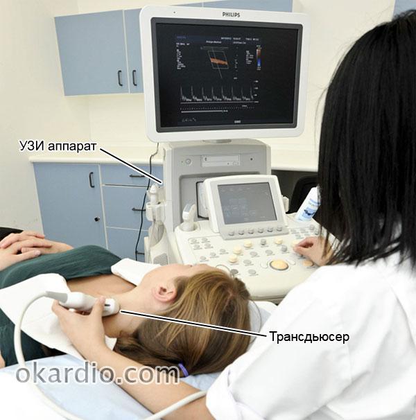 дуплексное сканирование сосудов