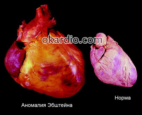 нормальное сердце и с аномалией Эбштейна