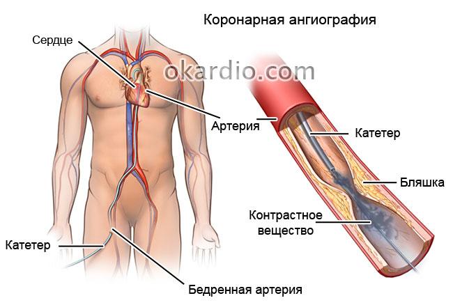 коронарная ангиография
