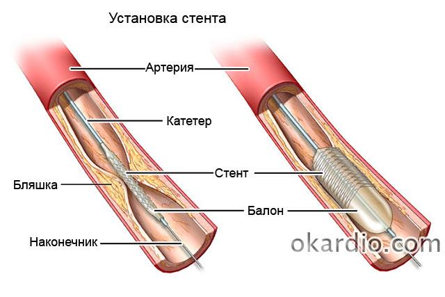 стент при атеросклерозе