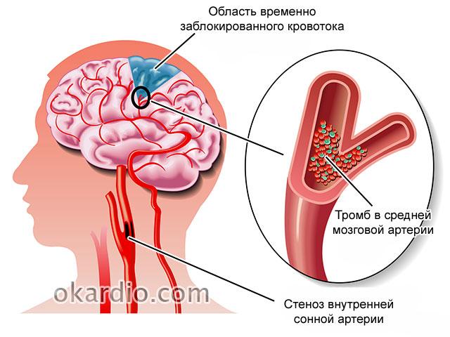средство от холестерина глюкозы ацетона