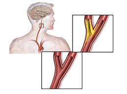 стеноз сонной артерии при атеросклерозе