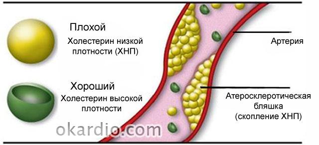 холестерин низкой и высокой плотности