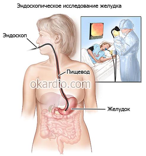 эндоскопическое обследование пищеварительного тракта