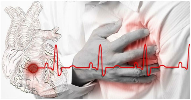 Предынфарктное состояние симптомы у женщин лечение