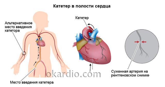 катетер в полости сердца