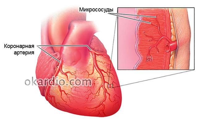 микрососуды сердца