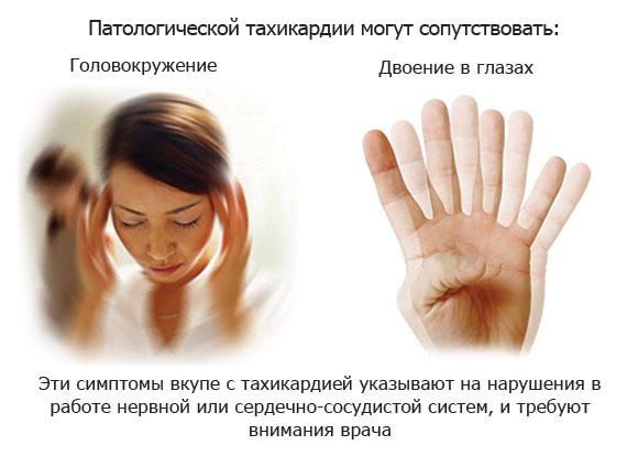 симптомы, сопутствующие патологической тахикардии