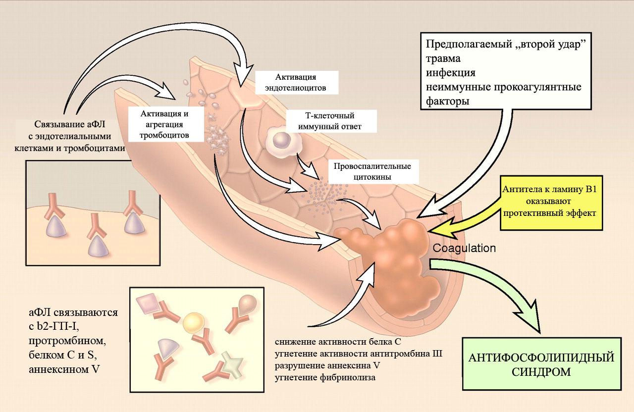 Флеболиты в малом тазу: что это такое, причины, симптомы и прогноз