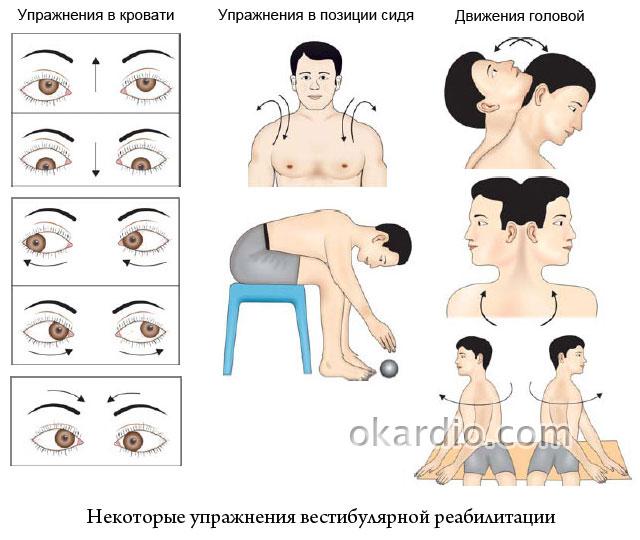 упражнения вестибулярной реабилитации