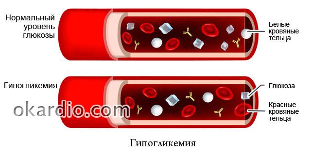 снижение уровня глюкозы к крови