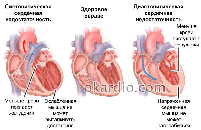 Признаки сердечной недостаточности у женщин до 30 лет