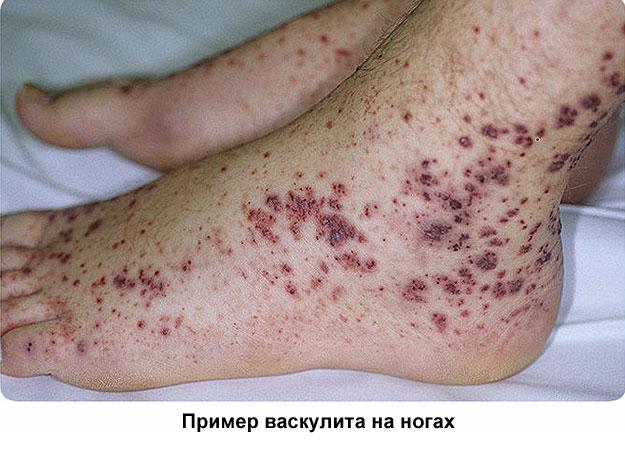 васкулит на ногах