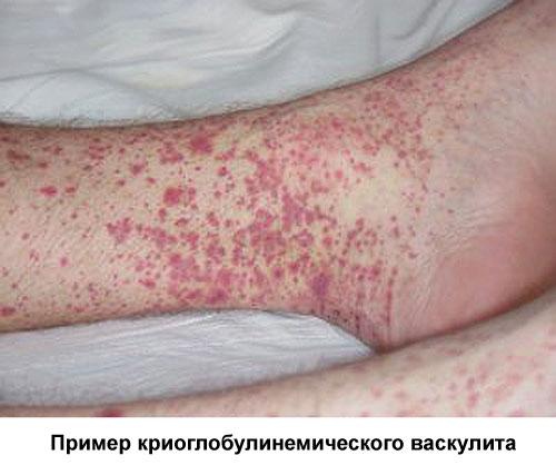 криоглобулинемический васкулит