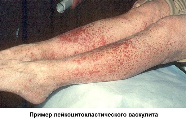 Васкулит на ногах: разновидности, причины, симптомы и лечение
