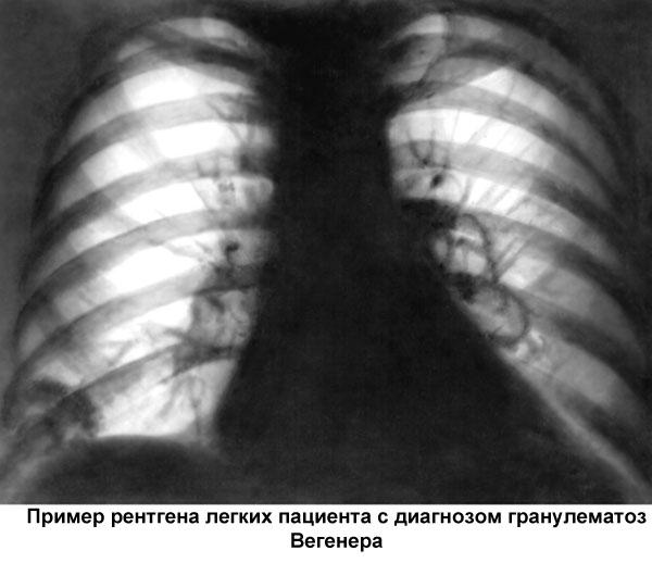 рентген легких при гранулематозе Вегенера