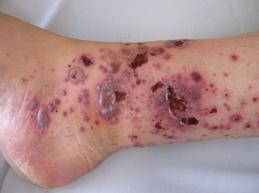запущенная форма васкулита на ноге
