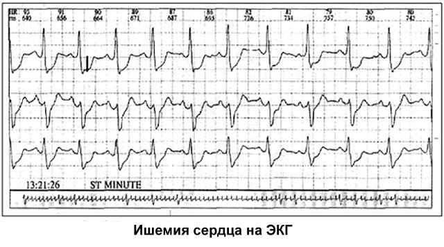 ишемия сердца на экг